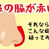 鼻の脇が赤いならこの症状を疑ってみて!【10年誤診で悩みました】